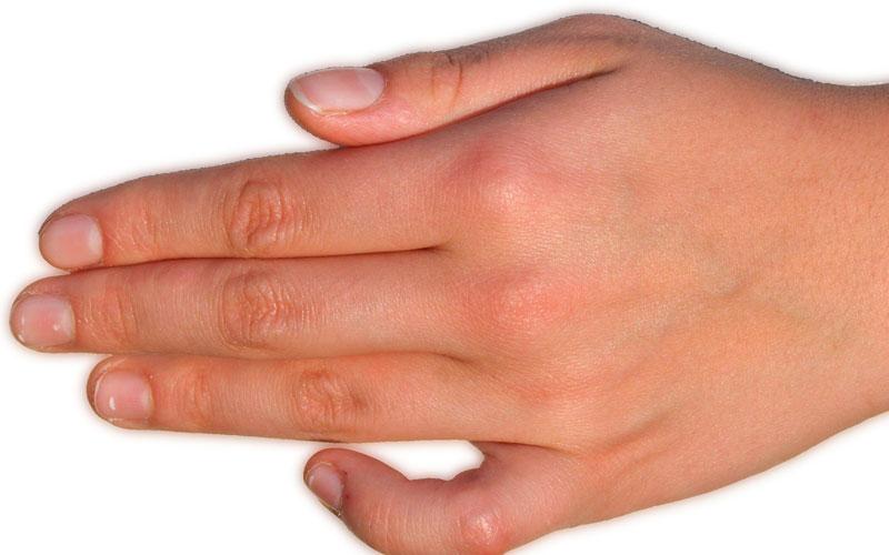 reimplante-dedo