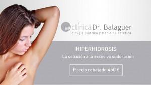 hiperhidrosis-banner