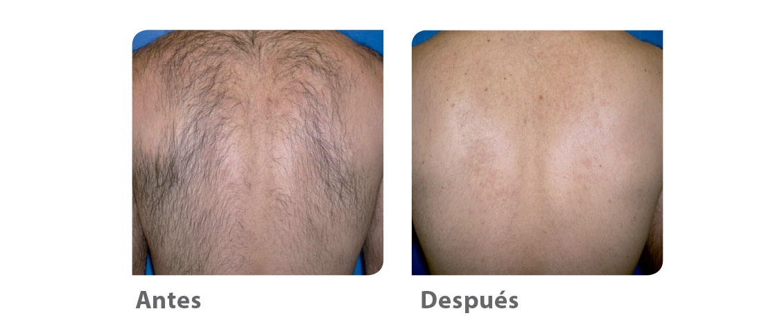 antes-despues