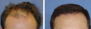 cirugia capilar