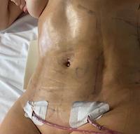 Aspecto del abdomen tras el drenaje LipoVaser